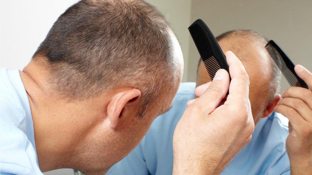 """【世界の薄毛治療3選】イギリスで髪を""""貯金""""できるサービス「ヘアバンク」が開発中!"""