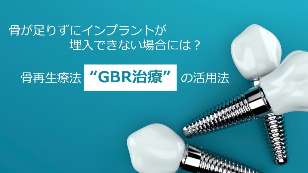 """骨が足りずにインプラントが埋入できない場合には? 骨再生療法""""GBR治療"""" の活用法"""