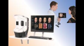 顔の皮膚画像解析カウンセリングシステム VISIA Evolution